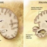Zdjęcie to porównanie budowy mózgu osoby zdrowej (po lewej) i osoby z chorobą Alzheimera (po prawej). Z lewej strony mamy podpisane elementy zdrowego mózgu - Kora mózgu, hipokamp, Kora śródwęchowa. Po prawej znaduje się przekrój mózgu osoby chorej. Podpisy: Znaczny ubytek kory mózgu, Zmniejszenie objętości Hipokampa, znaczny wzrost objętości komór mózgu.