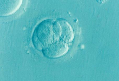 Na zdjęciu widoczne jest zapłodnienie, czyli jedodniowy embrion, przypomina bańkę wody z paroma mniejszymi bańkami w jej środku na niebieskim tle