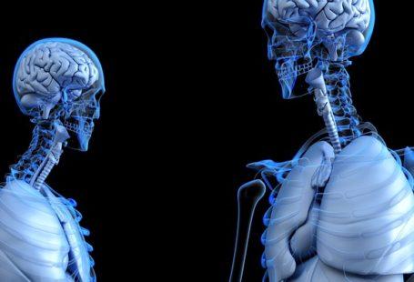 obrazek przedstawia rentgeny komputerowe dwóch postaci, dobrze widoczny jest mózg