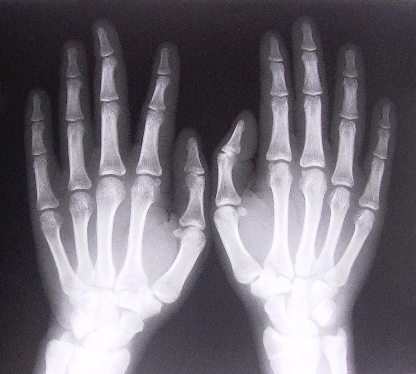 prześwietlenie dłoni człowieka, na którym widać kości palców oraz rąk