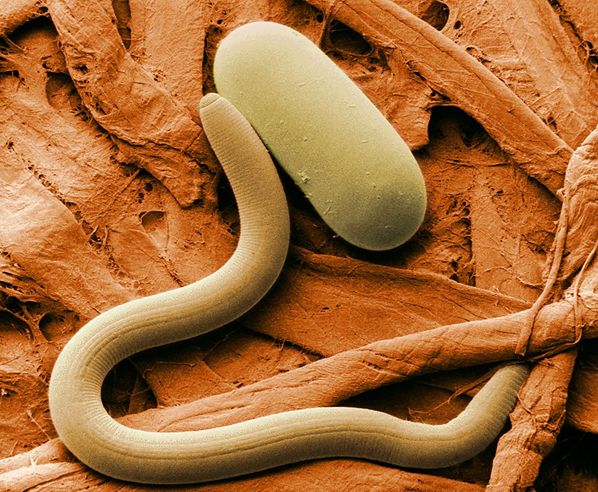 Osobnik młodociany i cytrynkowata cysta mątwika Heterodera glycines wypełniona larwami